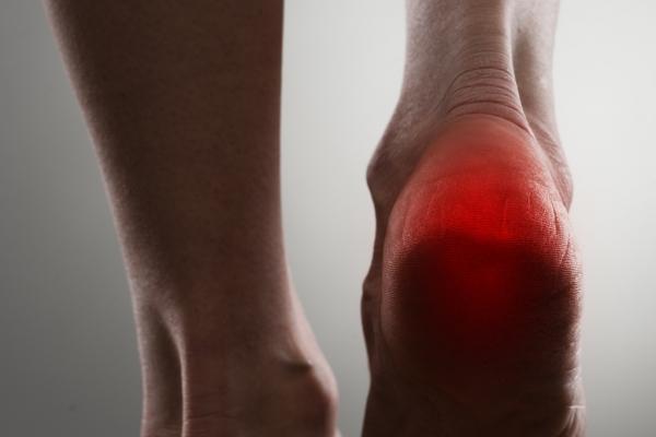Il dolore calcaneare: cosa fare?