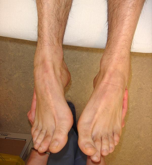 Instabilità della caviglia